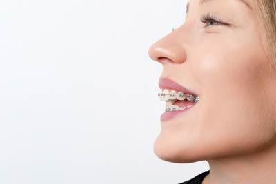 fixed-braces-main-featured-e1611081002177